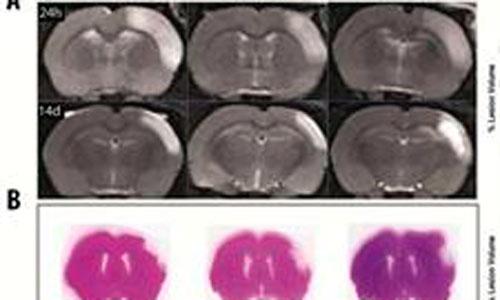 El uso de células madre ayuda a recuperar el cerebro tras un ictus