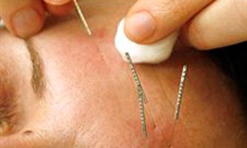 La acupuntura se presenta eficaz contra las alergias estacionales