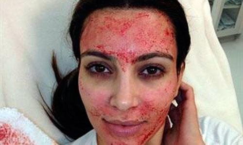 Kim Kardashian recurre a su propia sangre como tratamiento de belleza