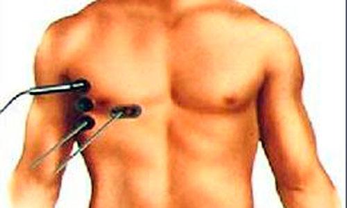 La cirugía cardiaca mininvasiva reduce el tiempo de recuperación