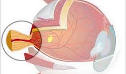 El daño del nervio óptico tiene relación con la evolución de la esclerosis