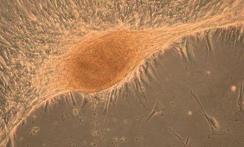 Las células madre de placenta son una vía para la regeneración del hígado