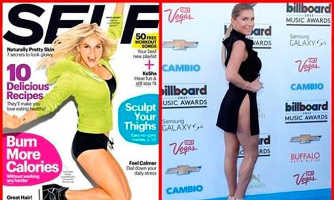 Kesha: