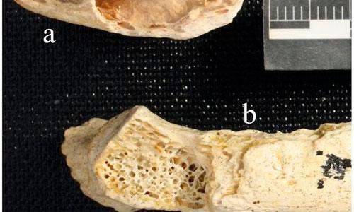 Hallado el tumor más antiguo del mundo