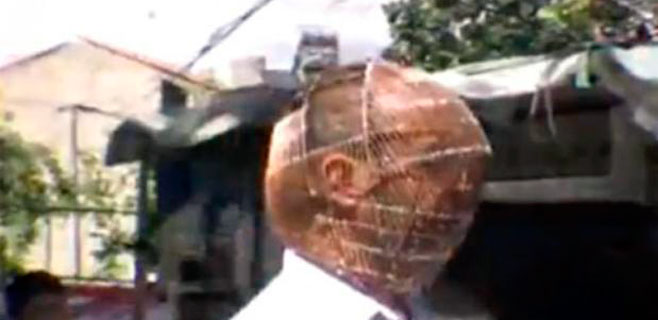 Se pone una jaula en la cabeza para dejar de fumar
