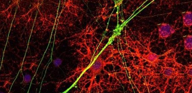 Identificados nuevos compuestos para tratar la esclerósis múltiple
