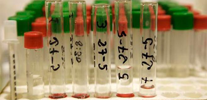 Un análisis de sangre ayuda a predecir la esperanza de vida