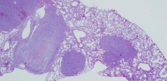 Investigadores logran bloquear un conductor principal de cáncer