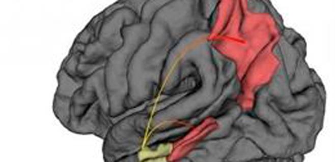 Un estudio muestra donde comienza el Alzheimer
