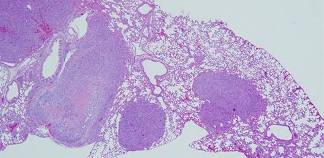 Un gen suprime tumores en un cáncer de pulmón muy agresivo