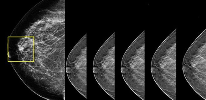 Se podrá detectar un tumor de mama 3 veces más pequeño