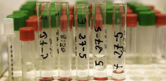 Un análisis de sangre identifica el Alzheimer 3 años antes