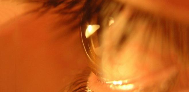 Medio millón de españoles no sabe que padece glaucoma