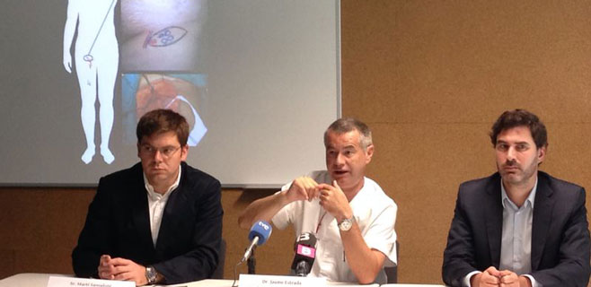 Son Espases realiza la primera cirugía de linfedema de las islas