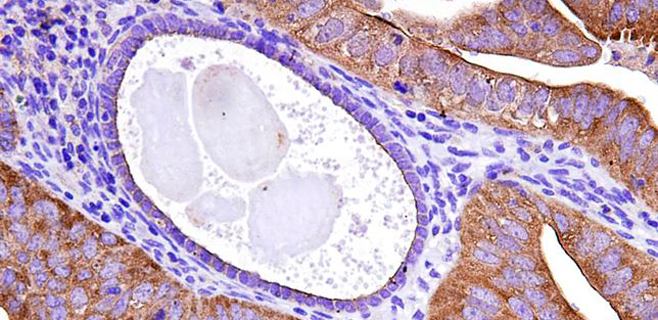 El 80% de cánceres de ovario se detectan tarde