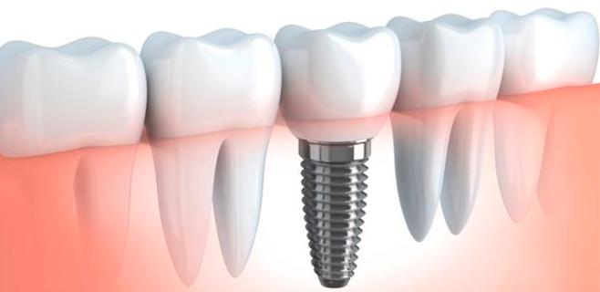 El 95% de implantes dentales funcionan al cabo de 15 años