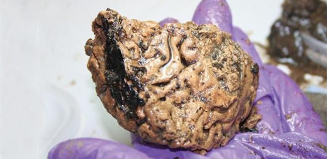 Hallado un cerebro humano de 2.600 años