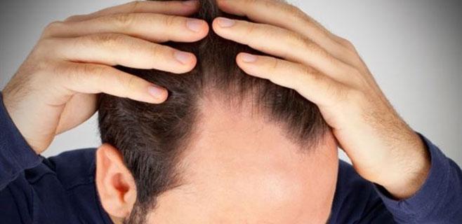 Arrancarse el pelo podría ser la solución a su caída