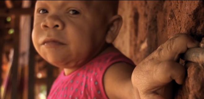 31 a os y la apariencia de un beb de 9 meses - Quitar mocos bebe 9 meses ...